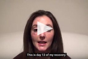 Rhinoplasty Video Diary –Day 13 After surgery, 15 of 18 - video