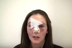 Rhinoplasty Video Diary –Day 1 After surgery, 3 of 18 - video