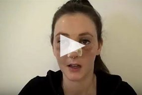 Rhinoplasty Video Diary –Day 2 After surgery, 4 of 18 - video