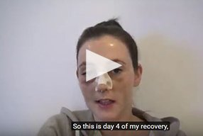 Rhinoplasty Video Diary –Day 4 After surgery, 6 of 18 - video