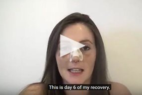 Rhinoplasty Video Diary –Day 6 After surgery, 8 of 18 - video