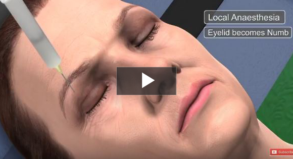 Rhinoplasty & Septoplasty Review & Testimonial video poster