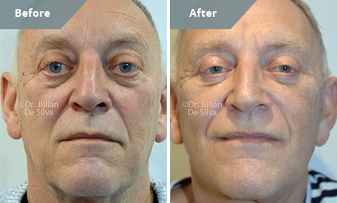 Patient before and after Nose Re-shaping