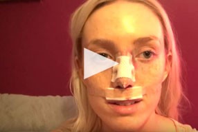Closed Rhinoplasty Video Diary -2 Hours After Surgery, 1 of 10