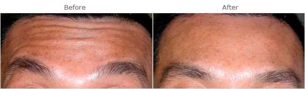 Male face, before and after anti-wrinkle injections Forehead, patient 1