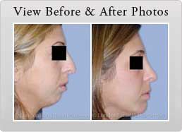 Chin Implant photos Before & After - banner
