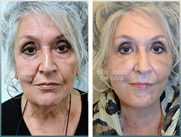 Female face, Before and 1 week After Facelift Treatment, face lifting surgery, front view, patient 21