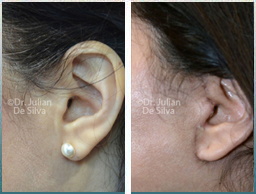 Female Neck, Before and 2 weeks After Facelift Treatment, neck lifting surgery, side view, patient 31
