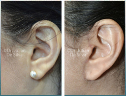 Female Neck, Before and 6 weeks After Facelift Treatment, neck lifting surgery, side view, patient 31
