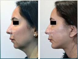 Female face, Before and 6 weeks After Facelift Treatment, neck lifting surgery, left side view, patient 31