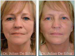 Female face, Before and 2 weeks After Facelift Treatment, face and neck lifting surgery, front view, patient 16