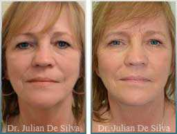 Female face, Before and 5 months After Facelift Treatment, face and neck lifting surgery, front view, patient 16
