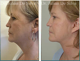 Female face, Before and After Facelift Treatment, face and neck lifting surgery, side view, patient 16