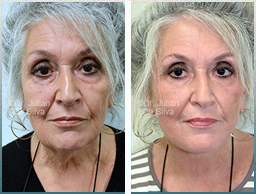 Female face, Before and 6 weeks After Facelift Treatment, face lifting surgery, front view, patient 21