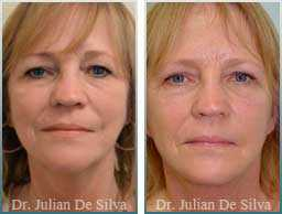 Female face, Before and 6 weeks After Facelift Treatment, face and neck lifting surgery, front view, patient 16