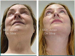 Female neck, Before and 6 weeks After Facelift Treatment, face and neck lifting surgery, front view, patient 26