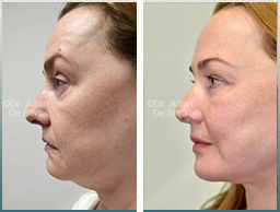 Female face, Before and 6 weeks After Facelift Treatment, face and neck lifting surgery, side view, patient 26