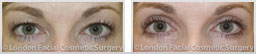 Woman's eyes, Before and After Eyelid Surgery Blepharoplasty, front view, patient 1