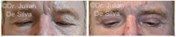 Male eyes, Before and After Eyelid Surgery Blepharoplasty, front view, patient 84