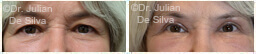 Woman's eyes, Before and After Eyelid Surgery Blepharoplasty, front view, patient 85