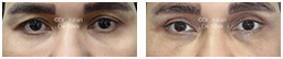 Male eyes, Before and After Eyelid Surgery Blepharoplasty, front view, patient 86