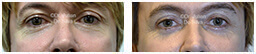 Male eyes, Before and After Eyelid Surgery Blepharoplasty, front view, patient 87