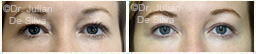 Woman's eyes, Before and After Eyelid Surgery Blepharoplasty, front view, patient 88