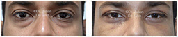 Male eyes, Before and After Eyelid Surgery Blepharoplasty, front view, patient 89