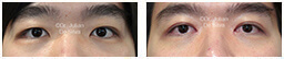 Male eyes, Before and After Eyelid Surgery Blepharoplasty, front view, patient 90