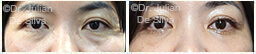 Woman's eyes, Before and After Eyelid Surgery Blepharoplasty, front view, patient 91