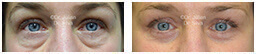 Woman's eyes, Before and After Eyelid Surgery Blepharoplasty, front view, patient 93