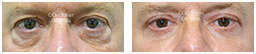 Male eyes, Before and After Eyelid Surgery Blepharoplasty, front view, patient 94