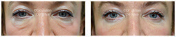 Woman's eyes, Before and After Eyelid Surgery Blepharoplasty, front view, patient 95