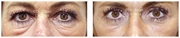 Woman's eyes, Before and After Eyelid Surgery Blepharoplasty, front view, patient 96