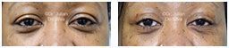 Woman's eyes, Before and After Eyelid Surgery Blepharoplasty, front view, patient 97