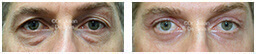 Male eyes, Before and After Eyelid Surgery Blepharoplasty, front view, patient 98