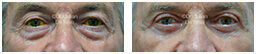 Male eyes, Before and After Eyelid Surgery Blepharoplasty, front view, patient 99