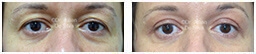 Woman's eyes, Before and After Eyelid Surgery Blepharoplasty, front view, patient 100