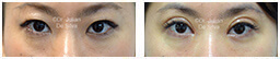 Woman's eyes, Before and After Eyelid Surgery Blepharoplasty, front view, patient 101