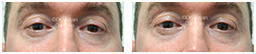 Male eyes, Before and After Eyelid Surgery Blepharoplasty, front view, patient 102