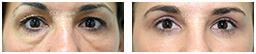 Woman's eyes, Before and After Eyelid Surgery Blepharoplasty, front view, patient 103