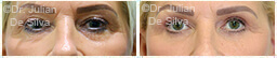 Woman's eyes, Before and After Eyelid Surgery Blepharoplasty, front view, patient 104