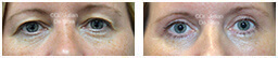 Woman's eyes, Before and After Eyelid Surgery Blepharoplasty, front view, patient 105