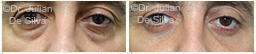 Male eyes, Before and After Eyelid Surgery Blepharoplasty, front view, patient 106