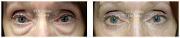 Woman's eyes, Before and After Eyelid Surgery Blepharoplasty, front view, patient 107
