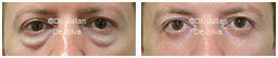 Male eyes, Before and After Eyelid Surgery Blepharoplasty, front view, patient 108