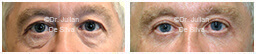 Male eyes, Before and After Eyelid Surgery Blepharoplasty, front view, patient 109