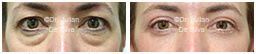 Woman's eyes, Before and After Eyelid Surgery Blepharoplasty, front view, patient 110