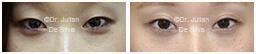 Woman's eyes, Before and After Eyelid Surgery Blepharoplasty, front view, patient 111
