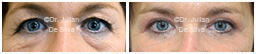 Woman's eyes, Before and After Eyelid Surgery Blepharoplasty, front view, patient 112